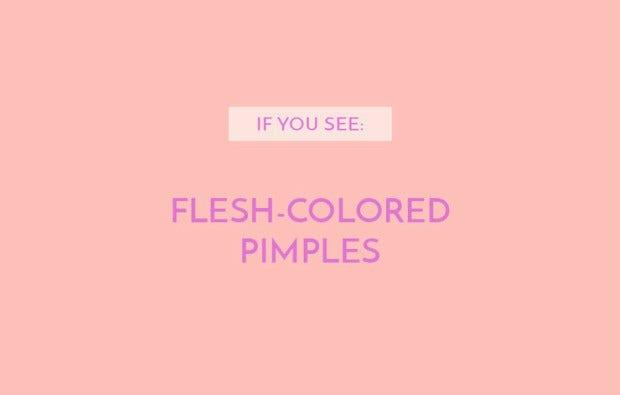 Flesh-colored pimples