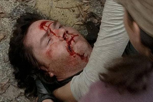 AMC The Walking Dead Eugene Porter Josh McDermitt bleeding Samson