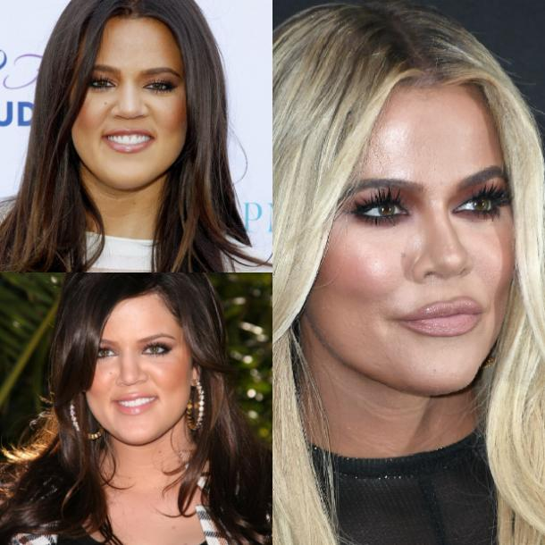 khloe kardashian before and after photos