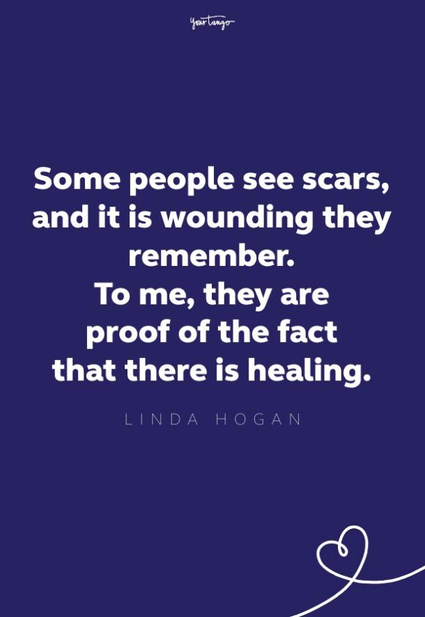 some people see scars, and it is wounding they remember. to me, they are proof of healing