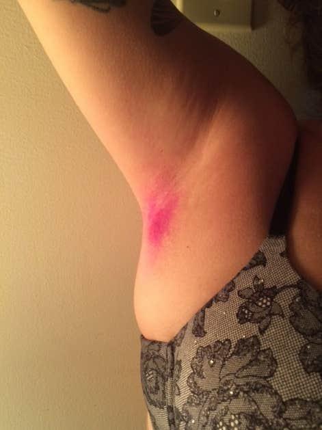 dyed armpit hair