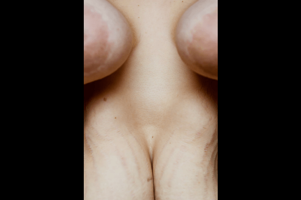 9. The pain is coated with stretchmarks.