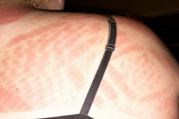 Intricate example of sunburn art with a black strap.