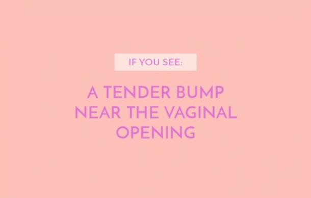 A tender bump near the vaginal opening