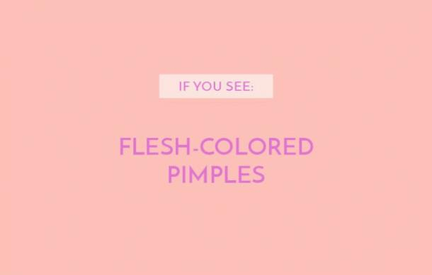 Flesh-colored pimples