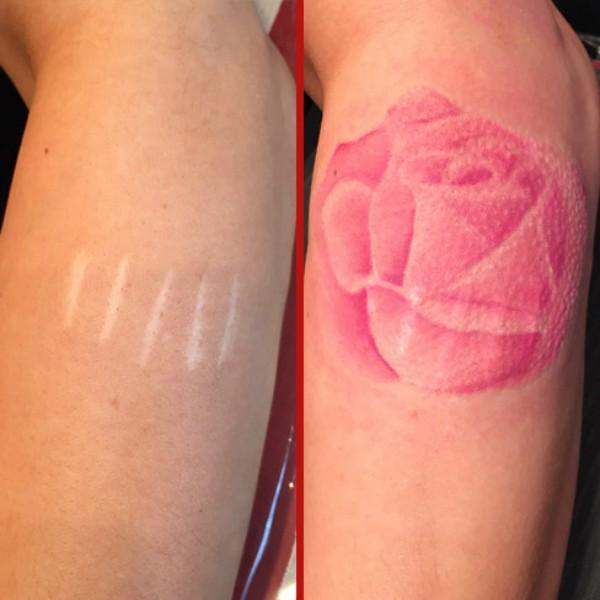 10 tattoo ideas to cover up cutting scars from self harm