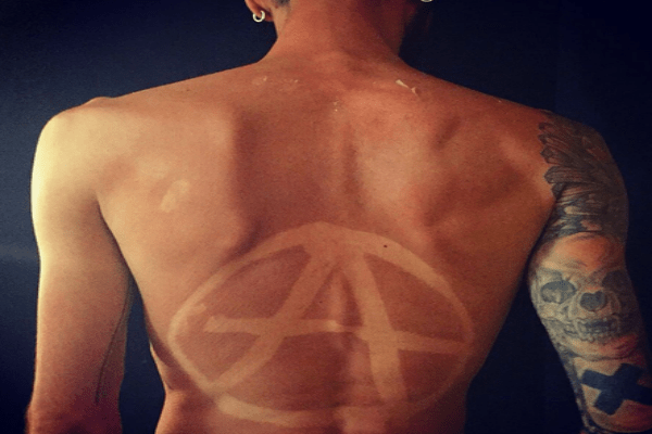 A large A created by sunburn