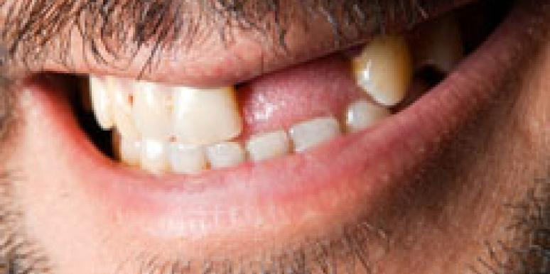Bad teeth dating site