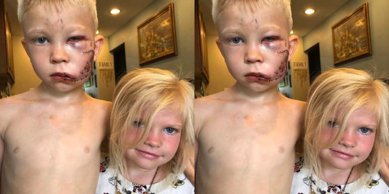 6-Year-Old Boy Hailed As Hero After Saving Sister From Dog Attack