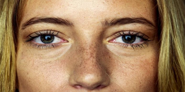 woman freckled face