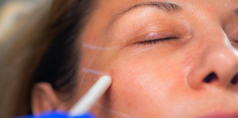 Whoa! This New Facelift Uses Thread To Lift Your Face — Watch Video