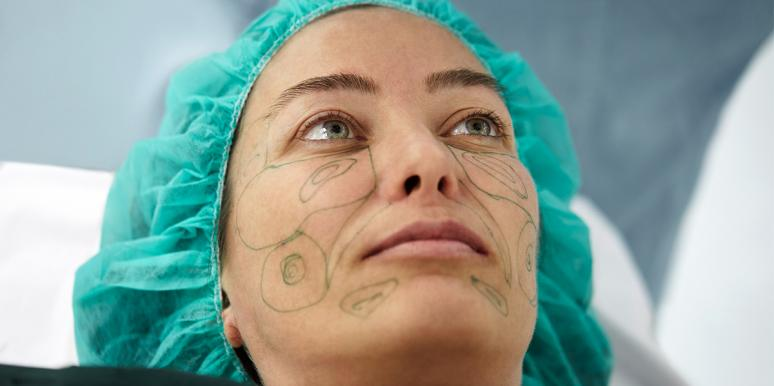 Before/After Photos Of A Facelift That Removes 10 Years Of Aging In 30 Minutes