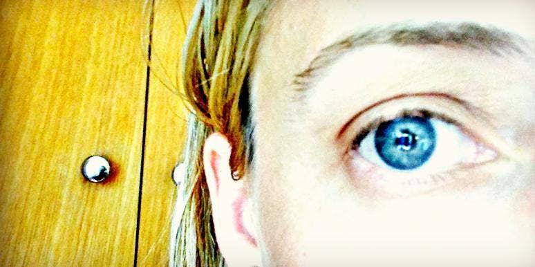 stress alopecia