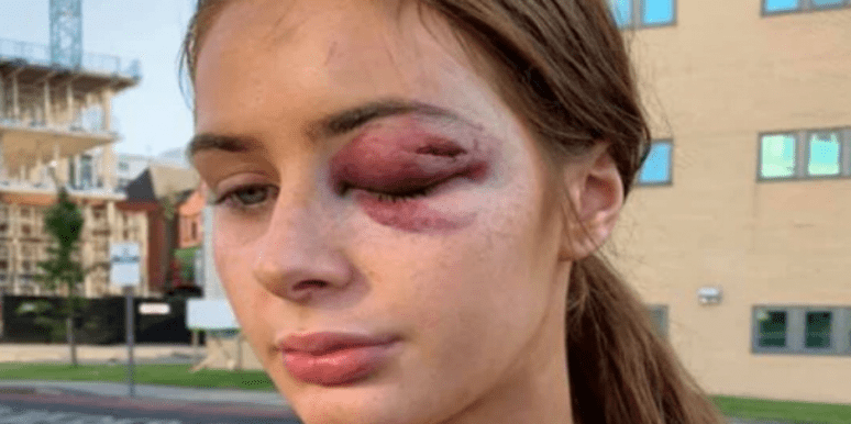 Who is Gabrielle Walsh? New Details On UK Teen Punched Out After Rejecting A Man's Advances