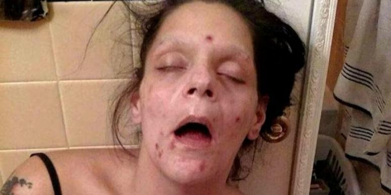 Recovering Addict Shares The Devastating Before And After Photos Of Drug Addiction