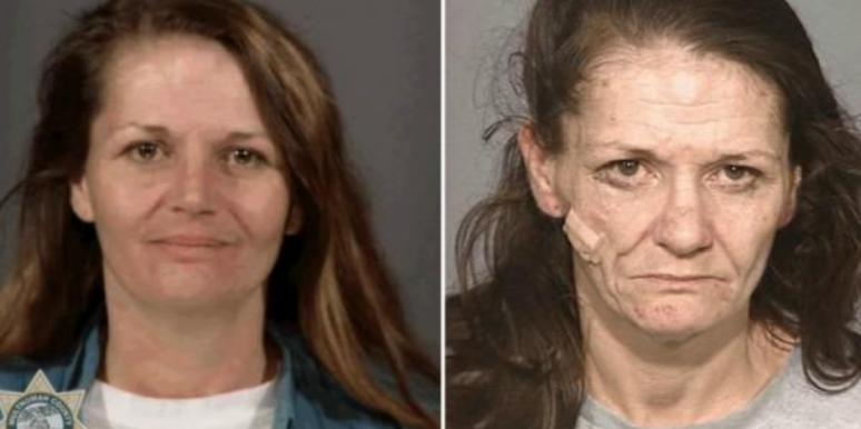 What People Who Have A Crystal Meth Drug Addiction Look Like: Before And After Pictures