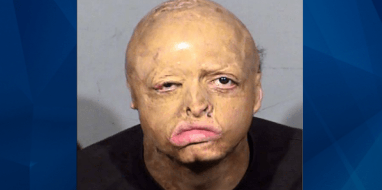 Who Is Michael Miller? New Details On Nevada Teen Disfigured In Fire Who Murdered Man Who Took Him