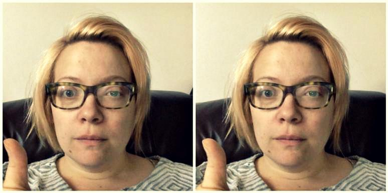 blonde woman in glasses with a shingles rash on her eye gives a wary thumbs-up