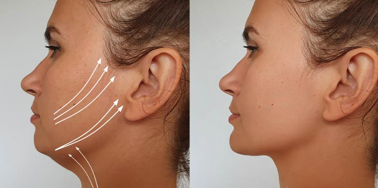 facelift before and after