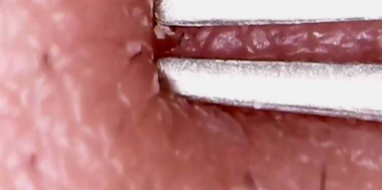 This Blackhead Popping Video Is So Bad And Yet So Very Good