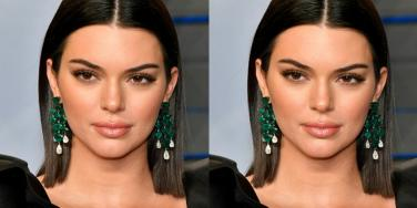 New Photo Has Fans Thinking Kendall Jenner Got Plastic Surgery