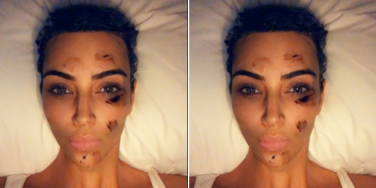 What is Psoriasis? 5 Things To Know About The Skin Condition Kim Kardashian West Has