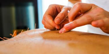 Acupuncture Provides Twice the Pain Relief of Standard Medicine