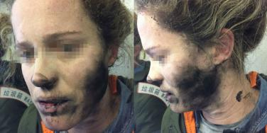 What You Need To Know About Using Lithium Batteries On Airplanes After This Woman's Headphones EXPLODED!