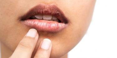 Peeling Or Chapped Lips? Something You Eat Might Be To Blame