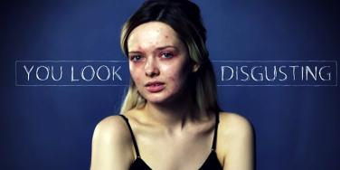 Model's Before/After Beauty Video Exposes Cyberbullying