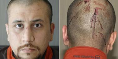 George Zimmerman with a bloody head shortly after his scuffle with his alleged murder victim, Trayvon Martin