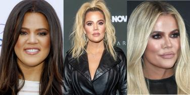 Khloe Kardashian before and after alleged plastic surgery