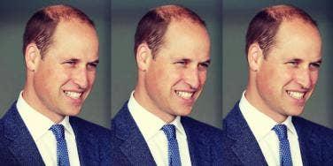 Prince William bald haircut photos