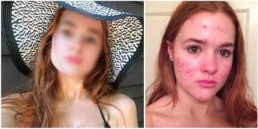Accutane before and after
