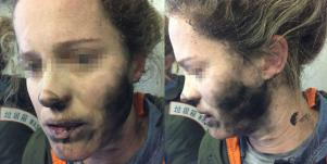 The Scary Reason This Woman's Headphones Exploded During Her Flight