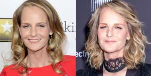 Helen Hunt plastic surgery photos