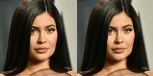 What Kylie Jenner's Lips Look Like Without Lip Fillers (And Why She Removed Them)